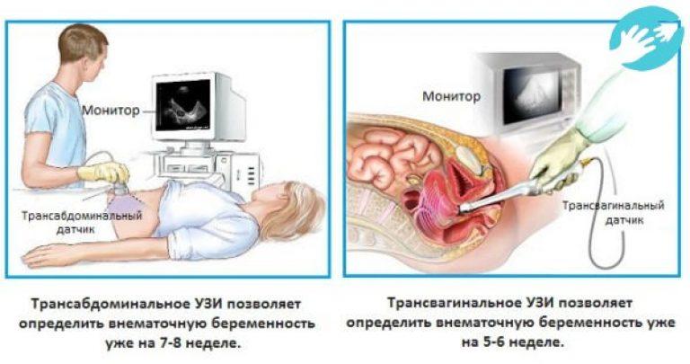 Опасность вагинального узи без